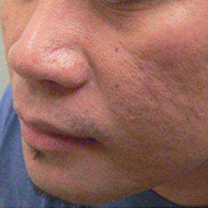 Acne-scarring-before-erbium-laser