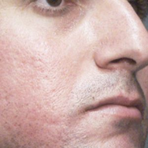 Acne-scars-before-laser-resurfacing