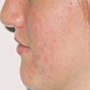 Acne_After_LED_Treatment