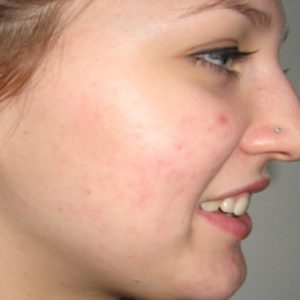 Acne_After_Treatment