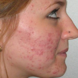 Acne_Before_Treatment