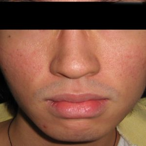 Acne_Scarring_After_Fraxel_Laser_Treatment
