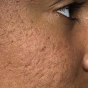 Acne_Scarring_Before_Fraxel_Laser