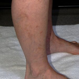 After_Leg_Vein_Sclerotherapy_Treatment