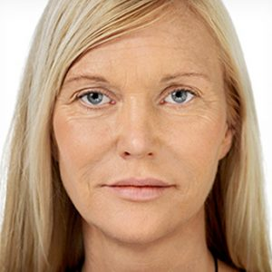 After_Non-Surgical_Facelift-2