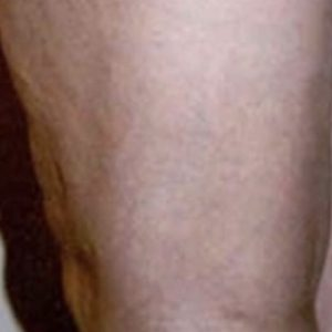 After_Sclerotherapy_Treatment