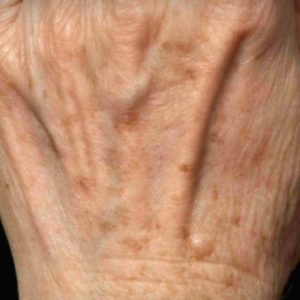 Age_Spots_After_Fraxel_Treatment