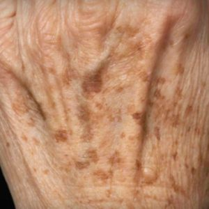 Age_Spots_Before_Fraxel_Treatment