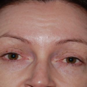 Anti-Wrinkle_Injection_Before