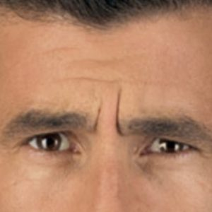 Anti-wrinkle-injection-men-Before