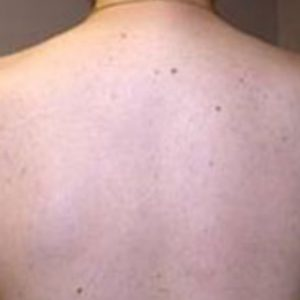 Back_Hair_After_IPL_Hair_Removal