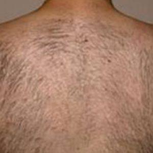 Back_Hair_Before_IPL_Hair_Removal