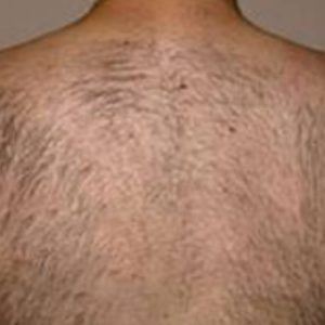 Back_Hair_Before_IPL_Hair_Removal