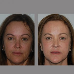 Before and After Erbium Laser Resurfacing