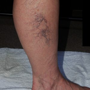 Before_Leg_Vein_Sclerotherapy_Treatment