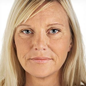 Before_Non-Surgical_Facelift-2