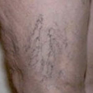 Before_Sclerotherapy_Treatment