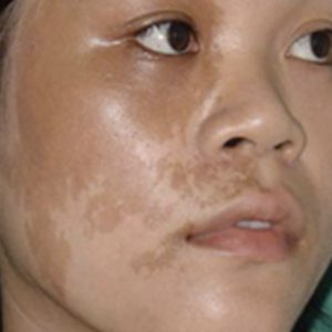 Birthmark_Before_Treatment