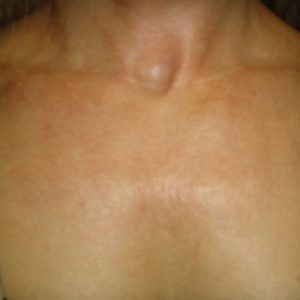 Chest_After_IPL_Rejuvenation
