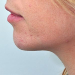 Chin_Augmentation_After_Fillers