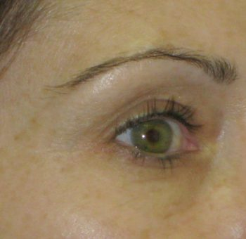 Dermal_Fillers_Tear_Trough_Before