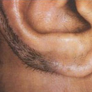 Ear_hair_before_IPL