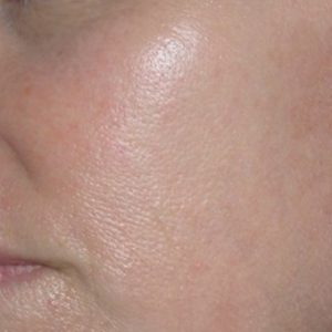 Facial_Redness_After_IPL_Treatment