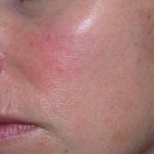 Facial_Redness_Before_IPL_Treatment