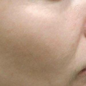 Freckles_After_IPL_Rejuvenation