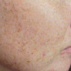 Freckles_Before_IPL_Rejuvenation