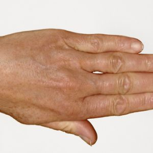 Hand_After_SkinBoosters