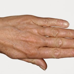 Hand_Before_SkinBoosters