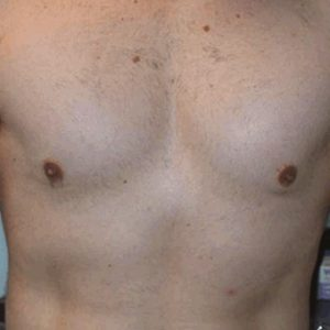 IPL_Chest_Hair_Removal_After