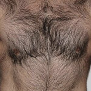 IPL_Chest_Hair_Removal_Before