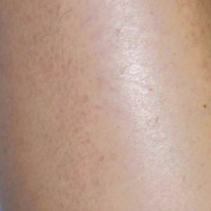 Leg_Hair_After_IPL_Hair_Removal