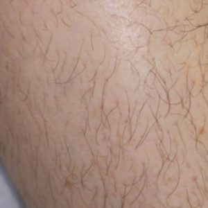 Leg_Hair_Before_IPL_Hair_Removal