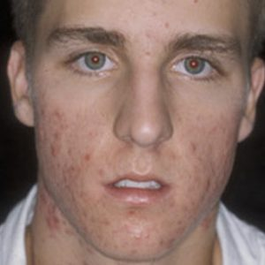 Male_Acne_Before_LED_Treatment