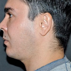 Male_Chin_Enhancement_After_Fillers
