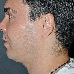 Male_Chin_Enhancement_Before_Fillers