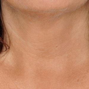 Neck_After_SkinBoosters