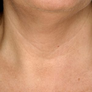 Neck_Before_SkinBoosters