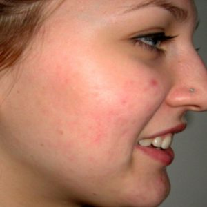 Red-scarring-after-Ipl and-laser