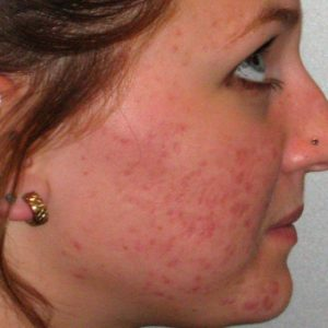 Red-scarring-before-Ipl and-laser