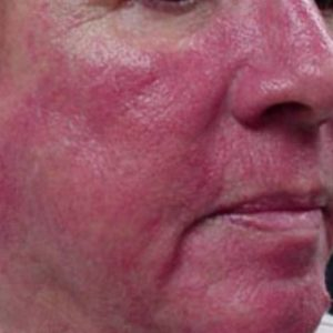 Rosacea_Before_IPL_Treatment
