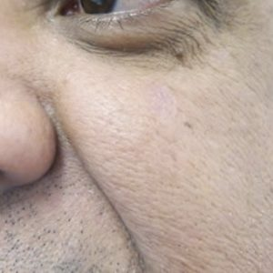 Seborrheic_keratosis_after_laser_removal