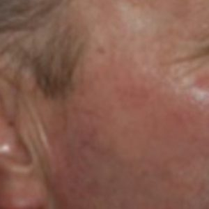 Solar_keratoses_after_photo_dynamic_rejuvenation