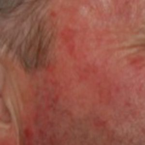 Solar_keratoses_before_photo_dynamic_rejuvenation