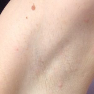 Underarm_Hair_After_IPL_Hair_Removal