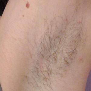 Underarm_Hair_Before_IPL_Hair_Removal