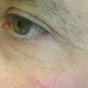 Wrinkles_Before_Micropen_Needling